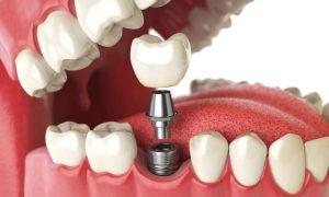Зубные импланты, коронки и протезы